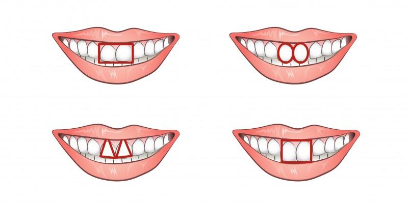 So einfach erkennst du einen Egoisten. Du musst ihm nur auf die Zähne schauen!