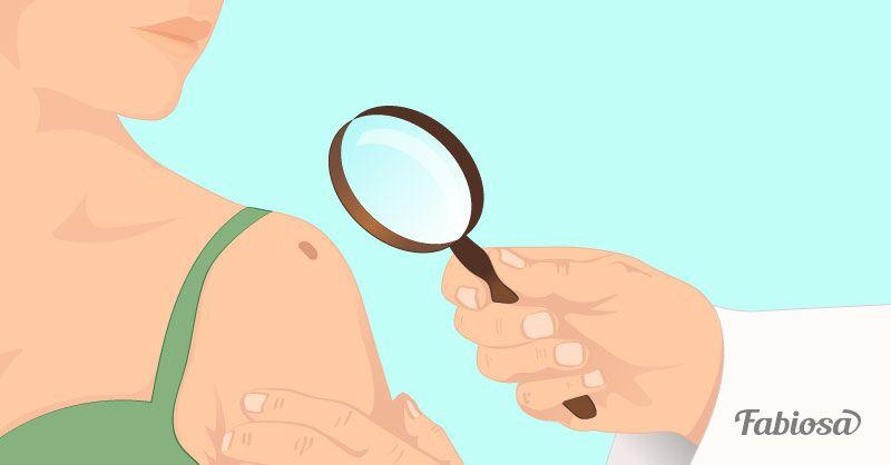 Veränderungen deiner Leberflecke können ein frühzeitiger Warnhinweis für Hautkrebs sein