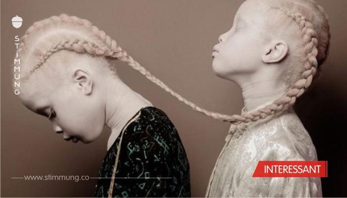 Zwilllingsschwestern mit Albinismus erobern Modewelt.