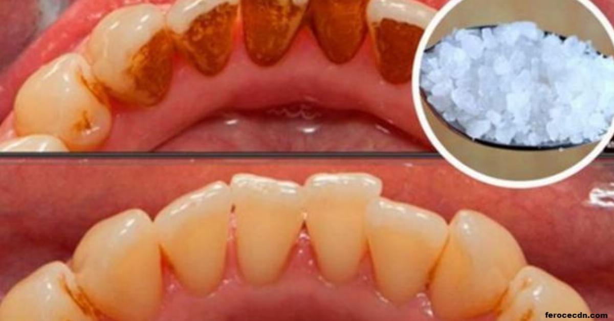 Wie kann man den Zahnstein ohne Hilfe eines Zahnarztes entfernen... Probieren Sie es selbst aus.