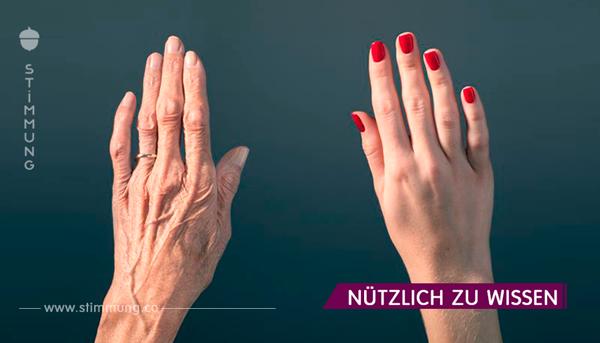 Die Hände des 46-Jährigen sahen aus wie ein 70-Jähriger. Aber als ihre Freundin ihr dieses Geheimrezept erzählte, kann sie ihre Hände nicht erkennen!