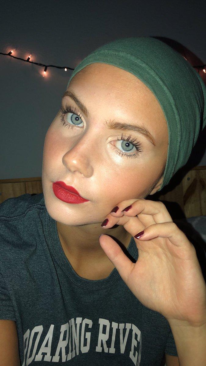 17 Jährige verlor alle Haare – bevor dem Schulfoto kreierte ihre Mutter jedoch etwas Schönes auf ihrem Kopf