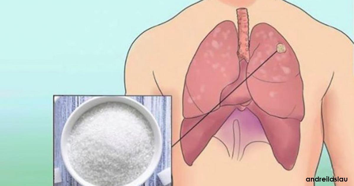 Wir alle haben Krebszellen im Körper. Hier können Sie verhindern, dass sie zu Tumoren werden