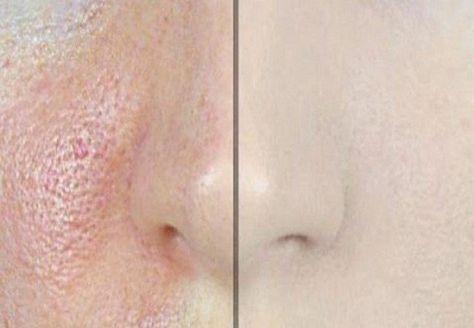 9 Mittel, um große Poren natürlich zu verkleinern.