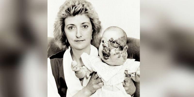Das Mädchen wurde mit einem Tumor im Gesicht geboren – so sieht sie an ihrem Hochzeitstag 26 Jahre später aus