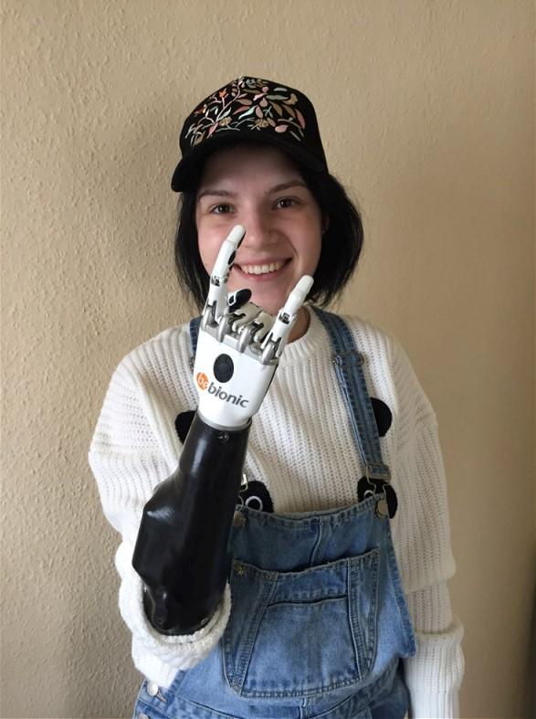 Deutsche Experten haben für die Frau, die von ihrem eifersüchtigen Ehemann grausam behandelt wurde, bionische Prothesen hergestellt.