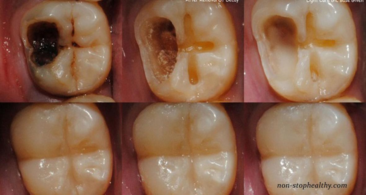 Hier sind 5 Schritte, um Karies zu stoppen und Ihre Zähne zu retten