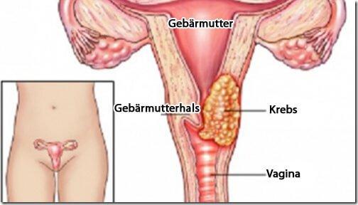 Vorsorge von Gebärmutterhalskrebs