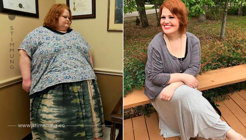 Stark Übergewichtige verliert in 2 Jahren 200 Kilogramm.