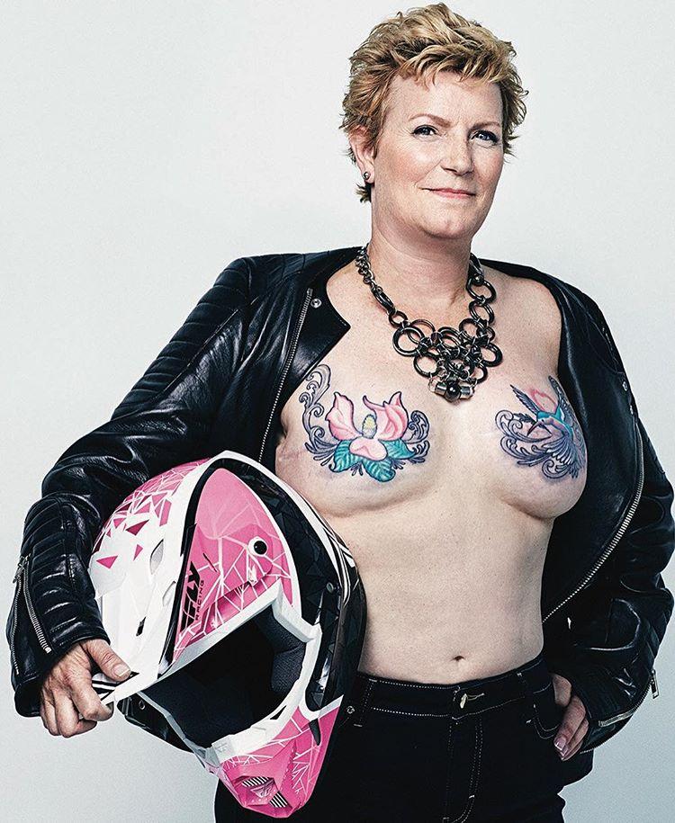 überlebende nach brustkrebs