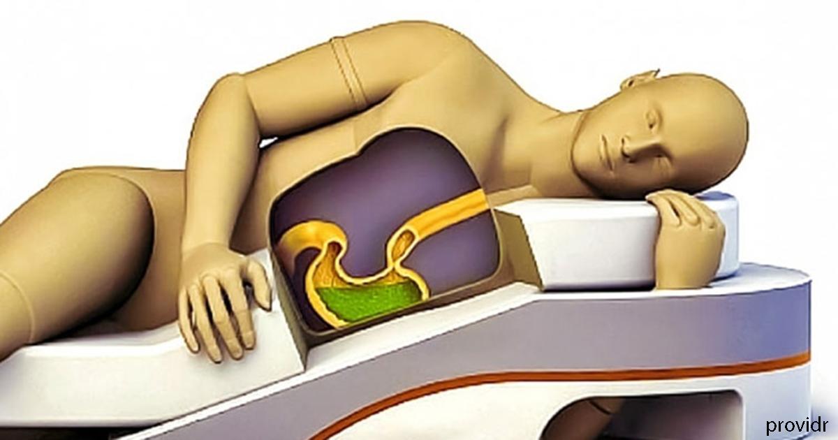 So beeinflusst Ihre gewählte Schlafposition Ihre Gesundheit.  Drehe dich auf die Seite!
