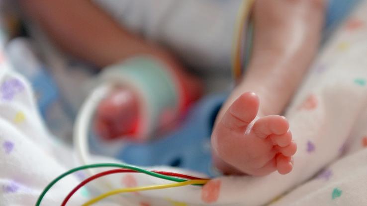 369 Gramm   dieses Kind wog nach der Geburt genauso viel. Mama hat sich schon von ihrem Sohn verabschiedet, als plötzlich ...