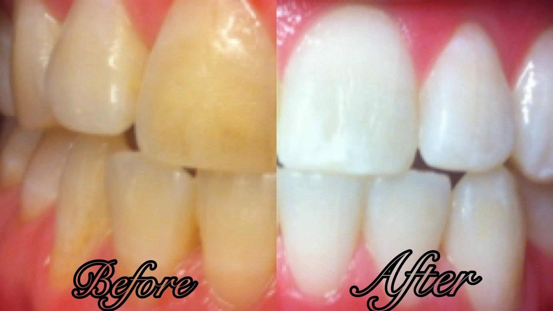Weiße Zähne: In NUR 3 Minuten mit echtem  Hausfrauentrick  zu strahlendem Lächeln