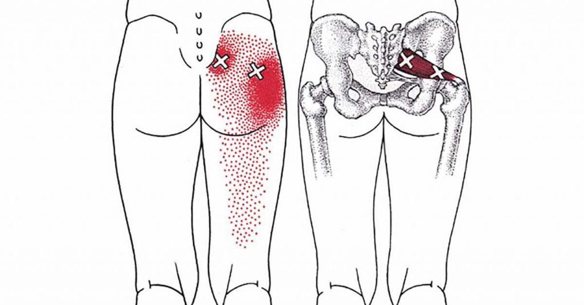 Diese 8 Dehnübungen für die Gesäßmuskulatur vermindern Ischias, Hüft- und Unterrückenbeschwerden.