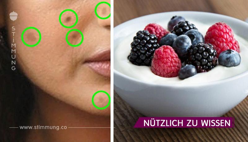 5 natürliche Wege zur Behandlung dieser unerschütterlichen dunklen Flecken, bekannt als Hyperpigmentierung!