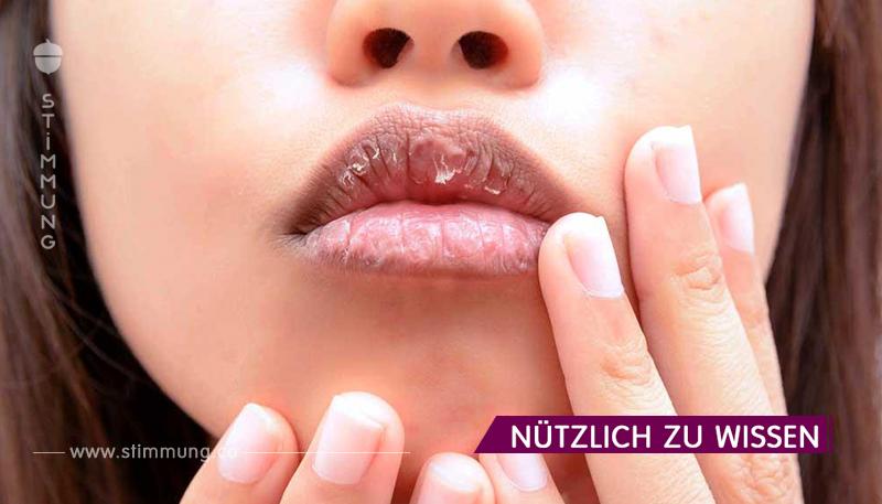 Trockene Lippen. Gründe und was zu tun ist, wenn Sie trockene Lippen haben!