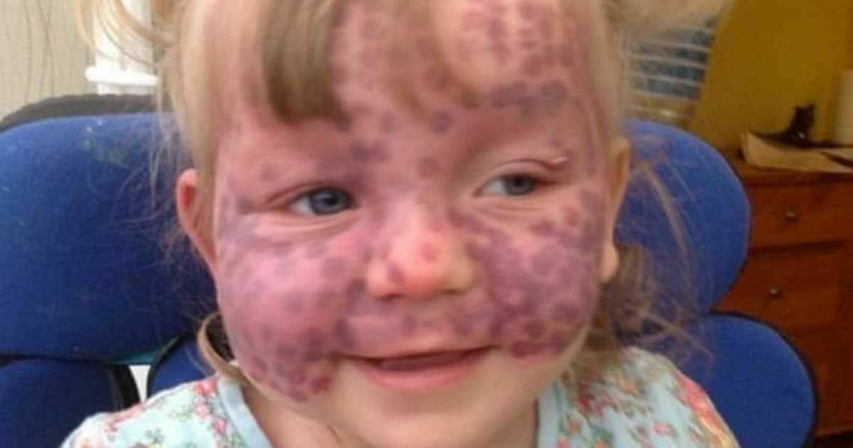 """Ärzte sehen  normale"""" blaue Flecke – 2 Wochen später kämpft das Mädchen ums Überleben"""