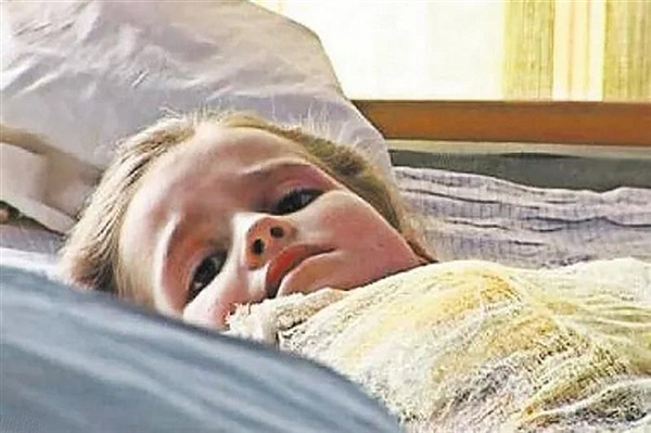 Sie nahm die 2-jährige Schwester aus dem Feuer und bekam schreckliche Verbrennungen, sehen Sie nur, wie dieses Mädchen aufgewachsen ist!