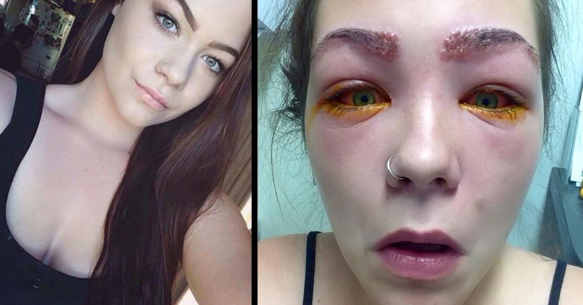 Drogerie-Färbemittel verätzt Gesicht von 16-Jähriger. Drogerie-Färbemittel verätzt Gesicht von 16-Jähriger.