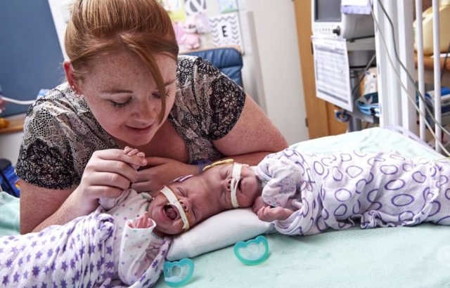 Diese Zwillinge wurden mit verschmolzenen Köpfen geboren. Schau dir die Kinder nach 2 Jahren an!