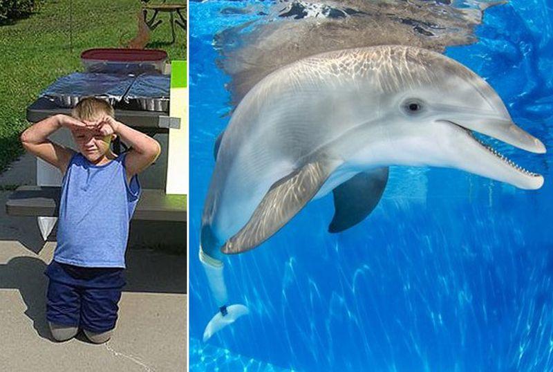 Ein Junge mit amputierten Beinen traf einen Delphin, der einen Prothesenschwanz hat. Berührend!