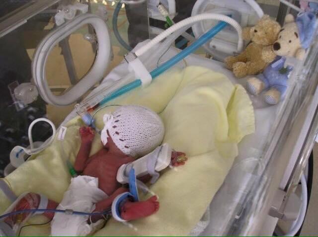 Ärzte glaubten nicht, dass das Baby überleben würde, aber dieser Kleine überraschte alle! Ein kleiner Kämpfer!
