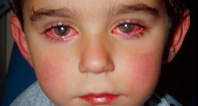 Der Junge verlor 75% seiner Sehkraft! Ein Spielzeug, das zur Erblindung führt! Man sollte das wissen!