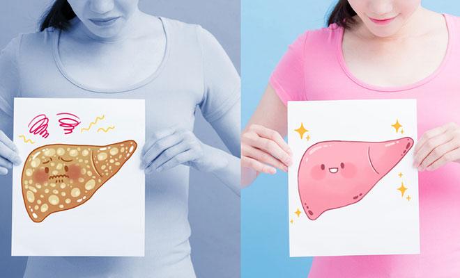 Fettleber – so bekommt die Leber ihr Fett weg