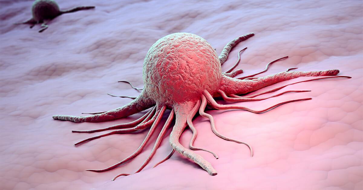 Leipziger Uni Klinik: Neue Krebs Therapie schlägt bei Patienten gut an