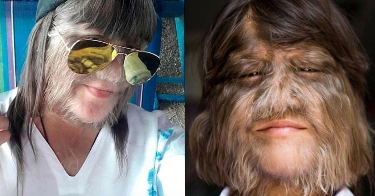 Behaartestes Mädchen der Welt rasiert sich nach Heirat