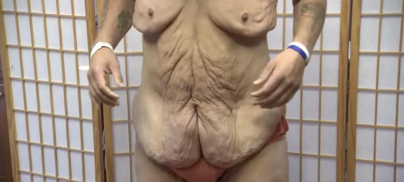 Mann nimmt 208 Kilo ab und ist nicht wiederzuerkennen