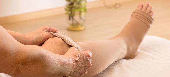 Lipödem: mehr als nur dicke Beine. Symptome, Ursachen und Behandlung