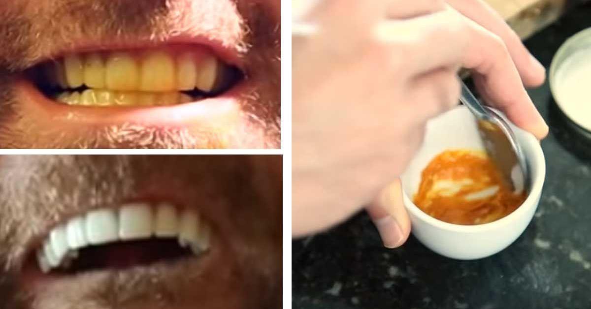 Zähne aufhellen mit 3 Küchenzutaten.