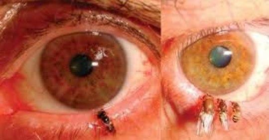Frau hat 4 lebende Bienen im Auge, ohne es zu merken