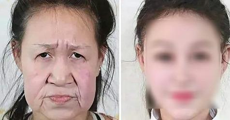 15-jähriges Mädchen hat einen Gendefekt und sieht aus wie eine alte Frau – erst eine Operation hilft