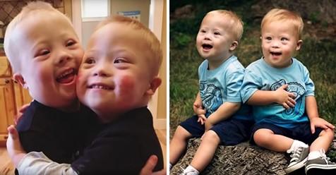 Zwillinge mit Downsyndrom nutzen die Sozialen Medien, um Freude zu verbreiten und Aufmerksamkeit zu erregen