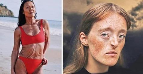 Besondere Merkmale: 10 Menschen mit einzigartigem Aussehen