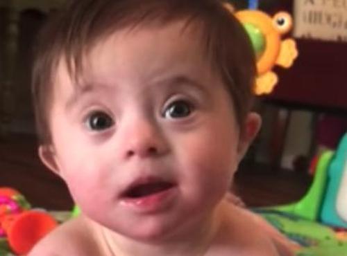 Ein Baby mit Down Syndrom wird von Millionen Menschen geliebt, nachdem sie ihrer Adoptivmutter ihr