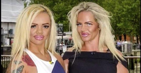 Mutter und Tochter geben 86.000 US-Dollar für Schönheitsoperationen aus, um auszusehen wie ihr Lieblingsmodel
