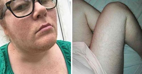 11 Frauen, die sich nicht mehr rasieren wollen