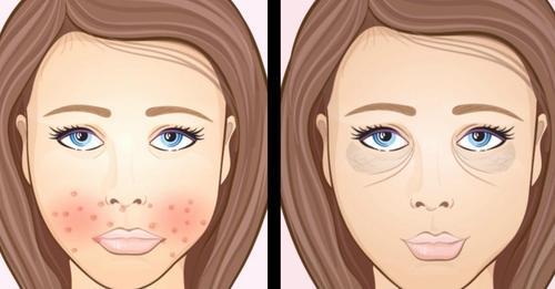 Krankheiten am Gesicht erkennen: 9 Hinweise