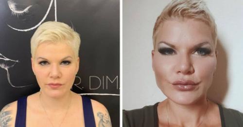Superhappy: Melanie Müller zeigt Gesicht nach Beauty OPs